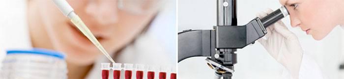 Plasma Rico en Plaquetas para la calvicie