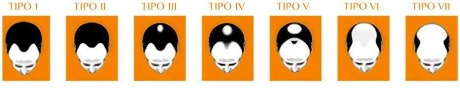 Causas de la calvicie o alopecia