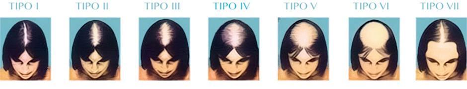 causas alopecia mujer