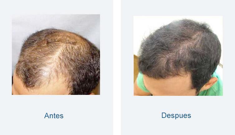 resultados trasplante de pelo