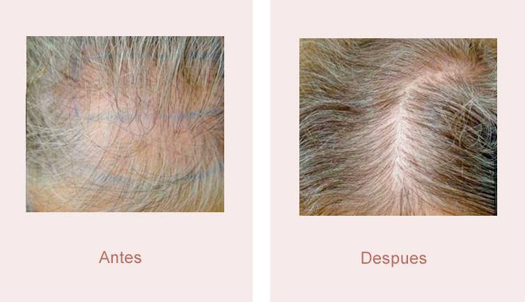 resultados trasplante de pelo mujer