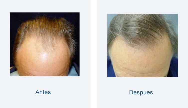resultador trasplante de pelo hombre