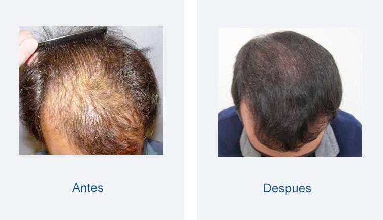 resultados trasplante de pelo masculino