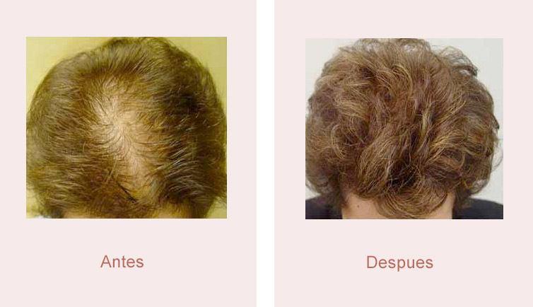 antes y despues trasplante de pelo