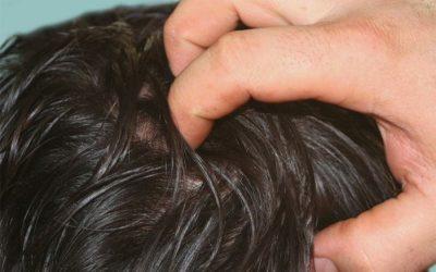 Qué es la caspa en el cuero cabelludo