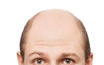 Alopecia androgenética patrón masculino