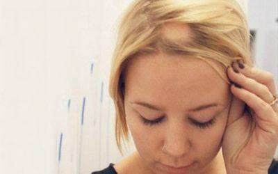 Alopecia por Estrés